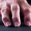 Osteoarthritis and Rheumatoid Arthritis