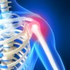 Frozen Shoulder – The True Cause